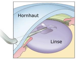 multifokallinsen OP